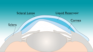 Scleral Lens over top of cornea