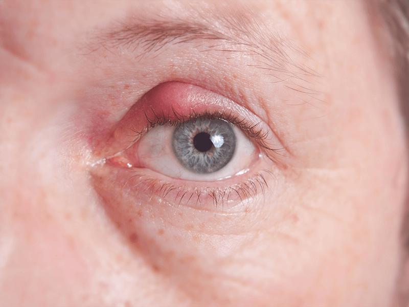stye of the eye