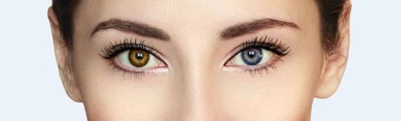 How does someone get two different-colored eyes (heterochromia)?