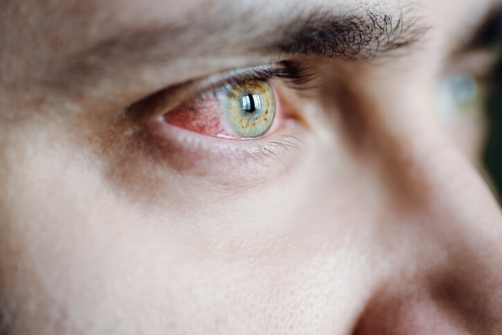 scratch your eye corneal abrasion